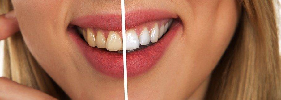 zmiana wybielenia zębów po stosowaniu irygatora
