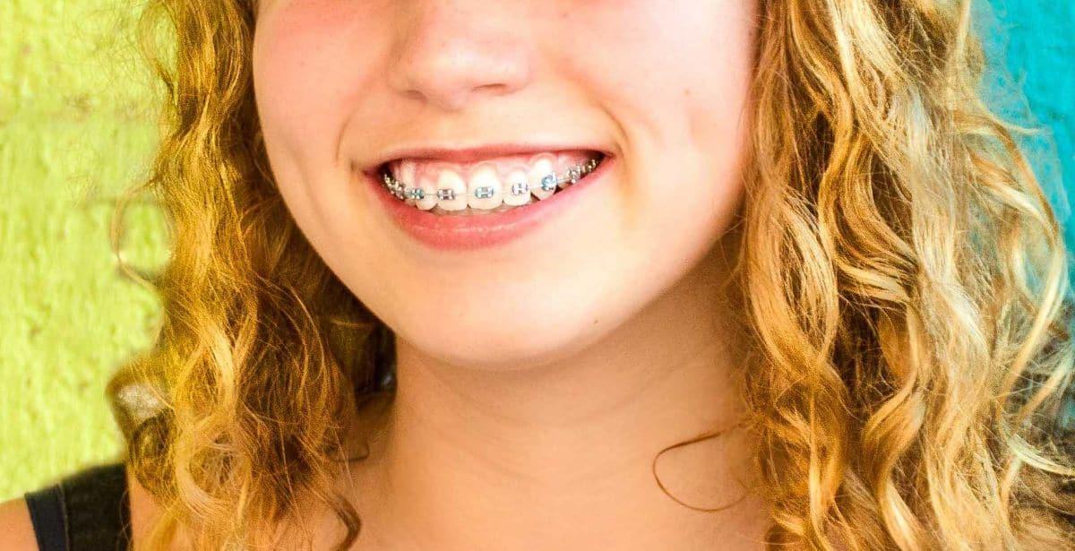 jak często myć zęby z aparatem korekcyjnym/ortodontycznym